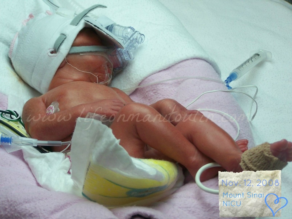 Little One: born at 28 wks-4d. 980 g at birth. 72 days in the NICU. The Pampers preemie diaper was so tiny, yet still too big for her!