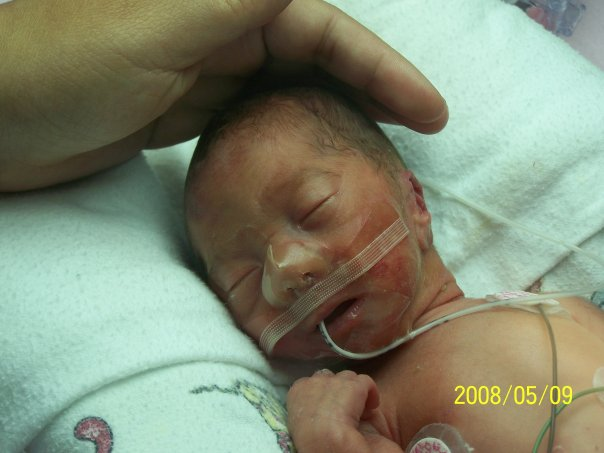 preemie so fragile